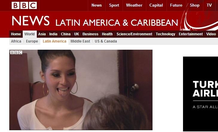 【画像あり】痛くて食べられない! 痩せて綺麗になるために舌にメッシュを縫い付けた準ミス・ベネズエラ