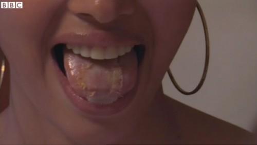 痩せるために舌にアレを縫い付けた女性2
