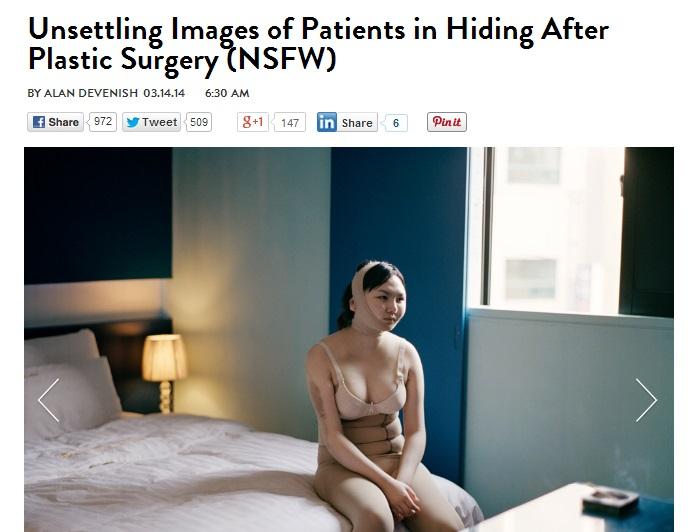 包帯グルグル巻きの姿はまるでケガ人 整形後の時間をホテルで過ごす女性たちのリアル