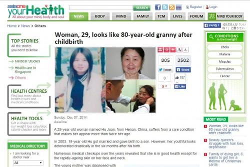 80歳のようにシワシワの29歳女性