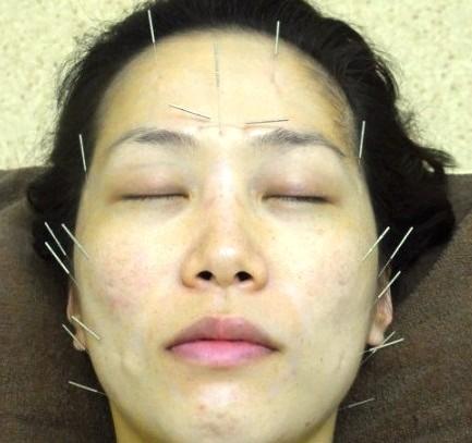 マドンナも注目する美容鍼を試してみた