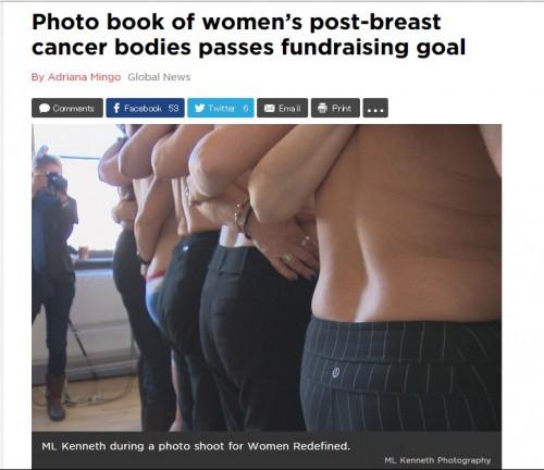 乳房を失っても女性は美しい 乳がん手術をした女性の裸の写真集が話題