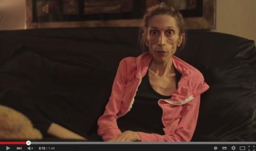 体重18キロの摂食障害女性の動画が話題