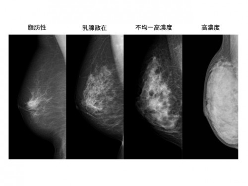 左から、脂肪性、乳腺散在、不均一高濃度、高濃度の乳房