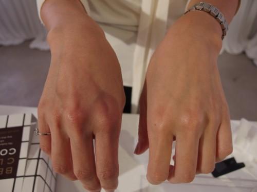 ケアした肌(右)と、なにもしていない肌(左)の明度差に驚き