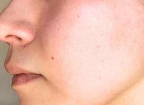 ファンデをやめて14年目のKさんの肌。