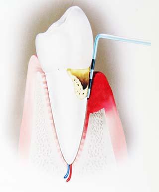 歯周ポケット_A