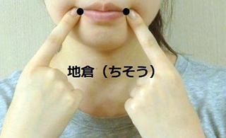 191013_ウートヒ_口内炎_丸尾氏02