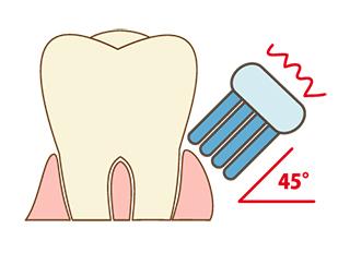 歯磨き斜め[3]のコピー