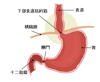 Hiatal,Hernia,And,Normal,Anatomy,Of,The,Stomach